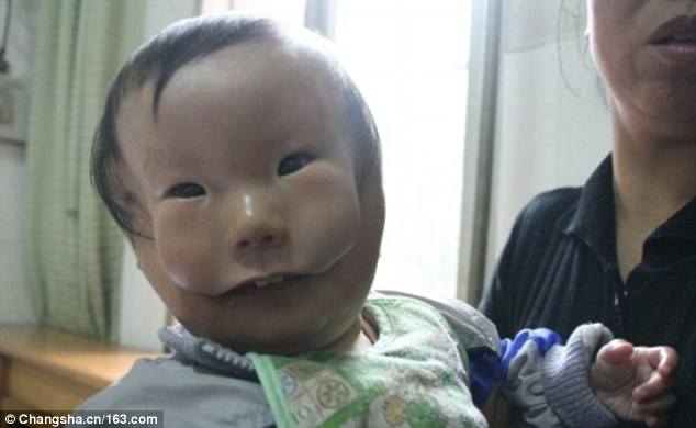 3c12451b00000578-0-heart_wrenching_huikang_born_with_a_rare_birth_defect_waited_to_-a-32_1484220353236